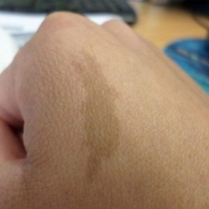 Birthmarks Treatment