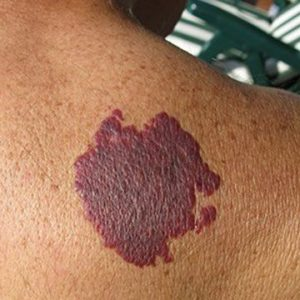 Port Wine Stains Treatment