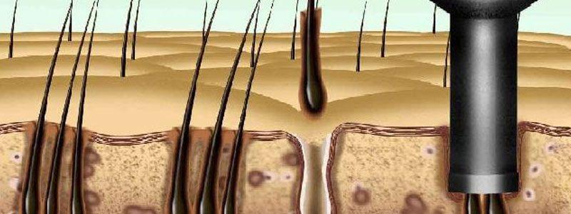 FUE Transplant & Top Cosmetic Procedures