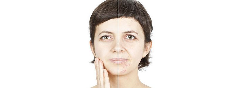 Remarkable Treatments of Acne, Lines & Wrinkles