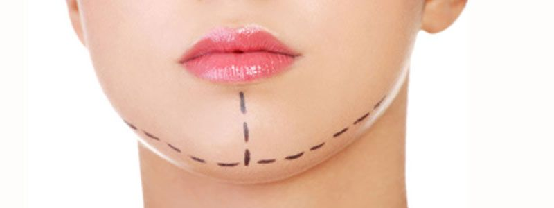 Rightly-alluring-cosmetic-chin-surgery