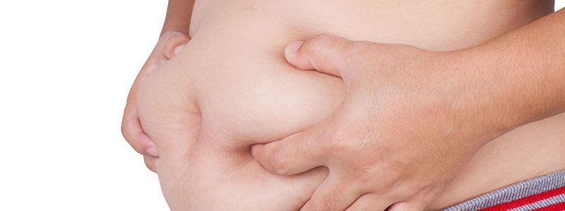 Liposuction efficiently removes fat from fatty pockets