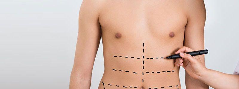 Liposuction sucks away unwanted body fat astutely