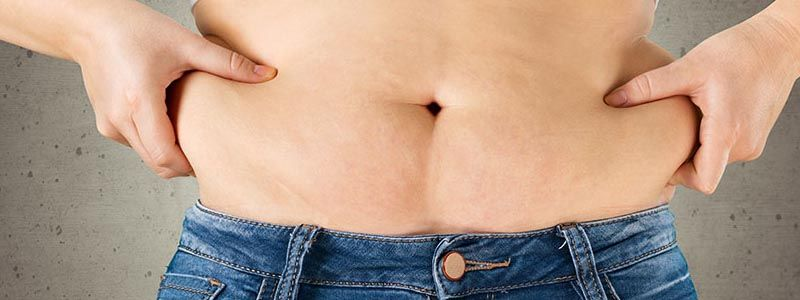 Have a liposuction in Dubai for an attractive figure.
