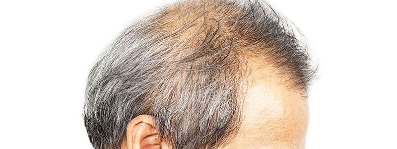How to Select a Surgeon for a Hair Transplant in Dubai?
