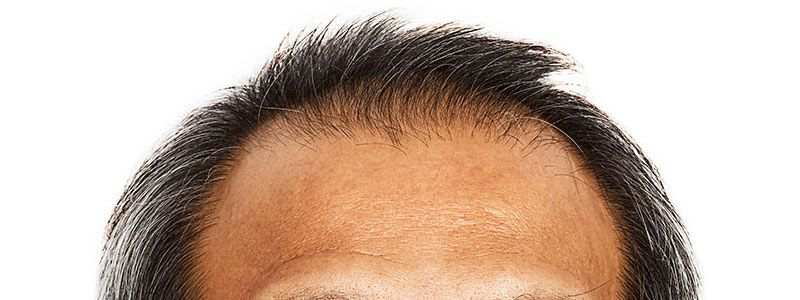 Hair Transplant in Dubai Has Much To Offer