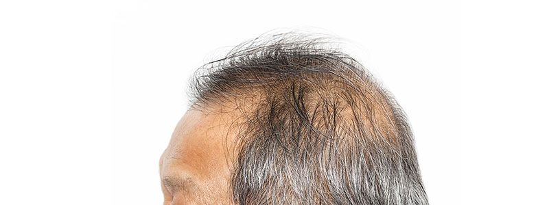Minimum Age for a Hair Transplant