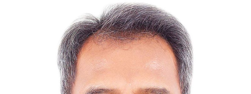 Choosing To Have Hair: Hair Transplant
