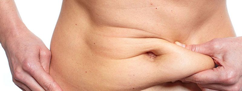 Tummy Tuck Surgery - Tips for Recovery