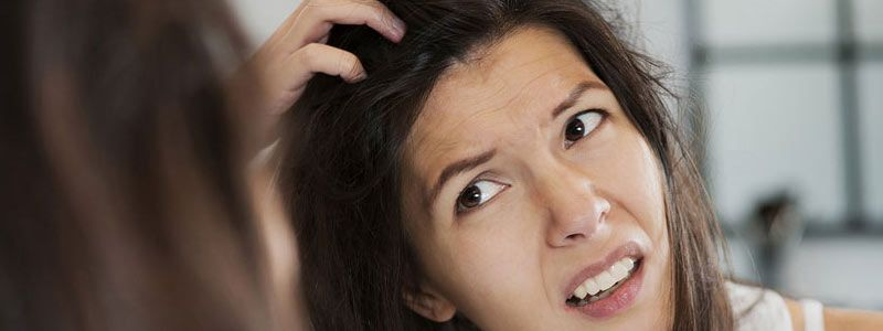 Easy Home Remedies for Dandruff