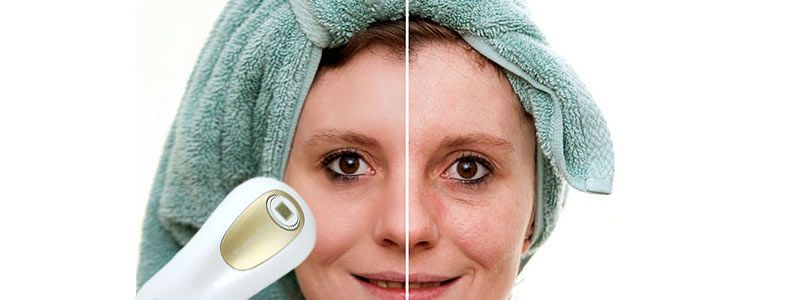 Treating-Acne-Scars-with-Laser