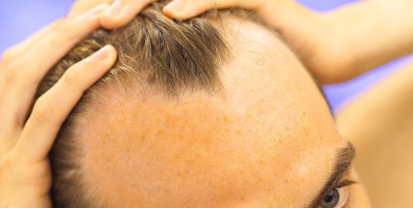 Hair Transplant Improve Hair Density