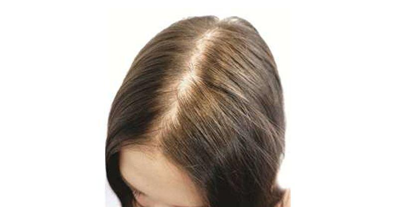 Hair Loss, Balding, Hair Shedding