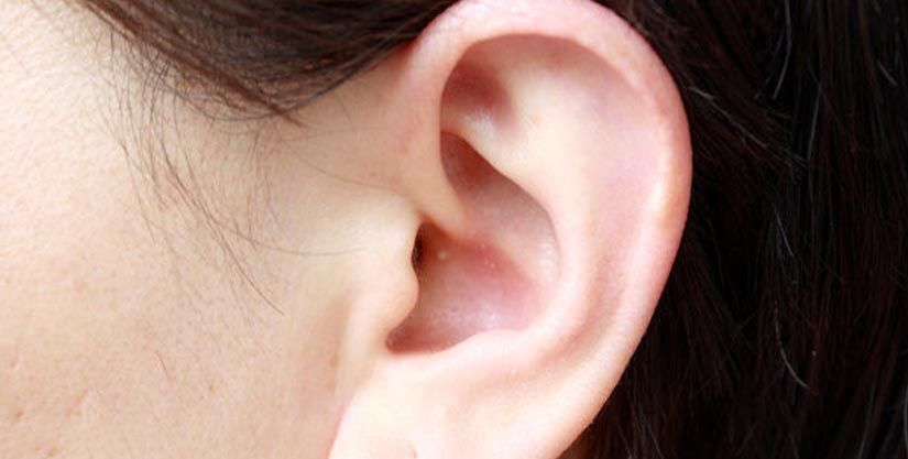 Ears with Otoplasty