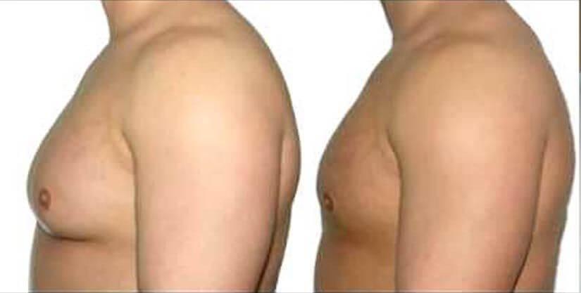 Overview-of-Gynecomastia