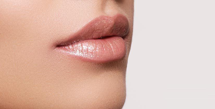 Overdone Lip Augmentation