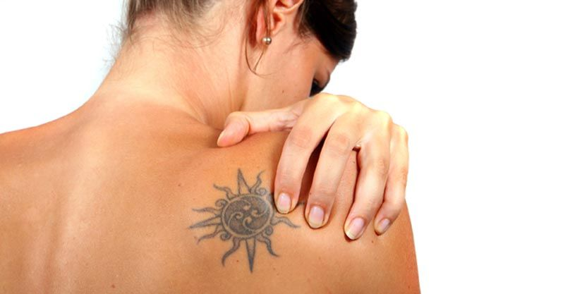 about Laser Tattoo Removal