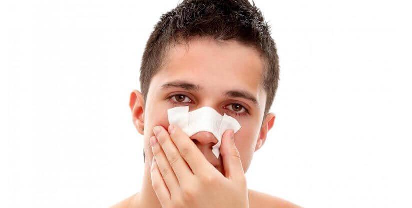 Broken Nose Surgery Recovery