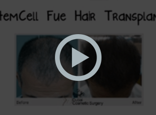 Stem Cell - Whiteboard Video