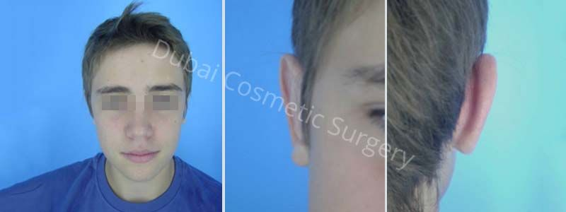 Auriculoplasty Results