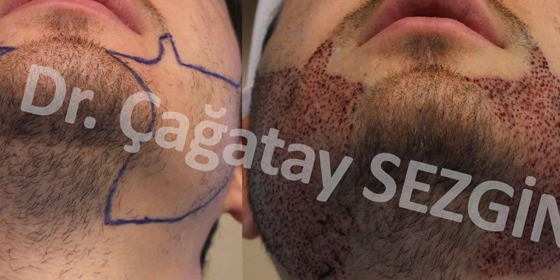 Dr Cagatay Beard 2