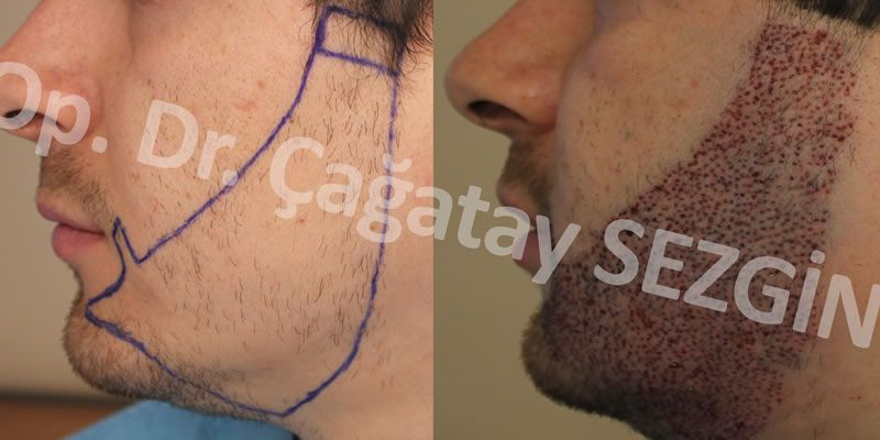 Dr Cagatay Beard