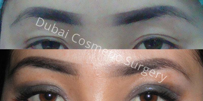 Eyebrows Treatment before & after 23