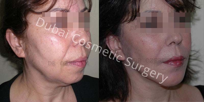 Facelift before & after 2