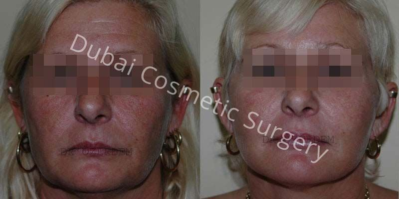 Facelift before & after 4