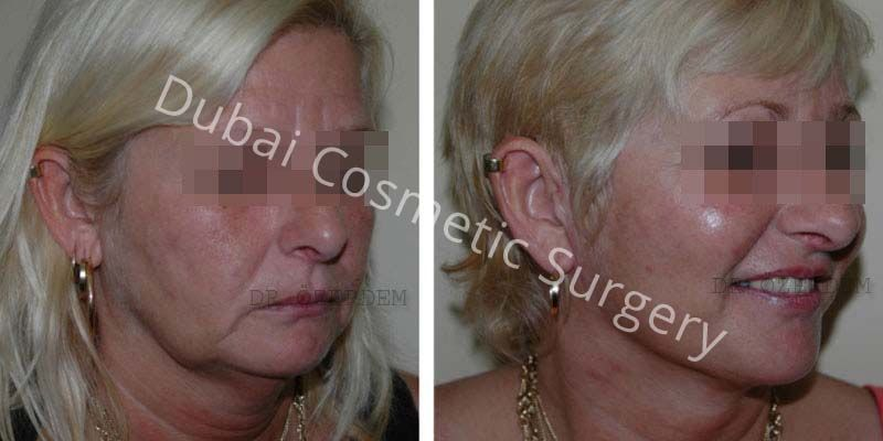 Facelift before & after 7