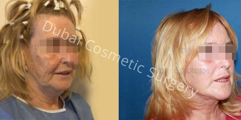 Face-Lift before & after 9