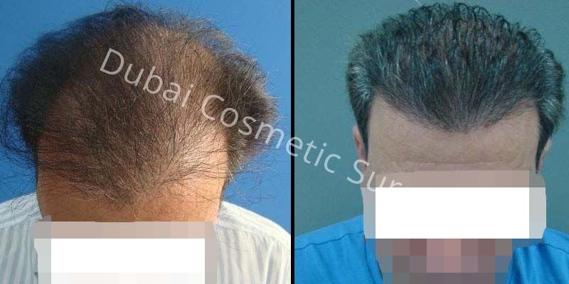 Hair Transplant Results 10