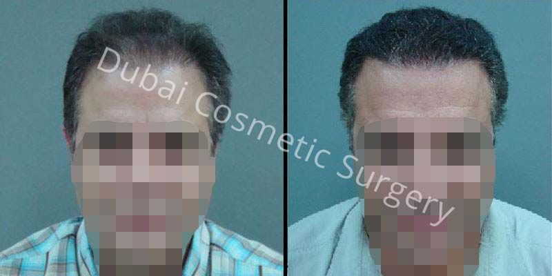 Hair Transplant Results 11
