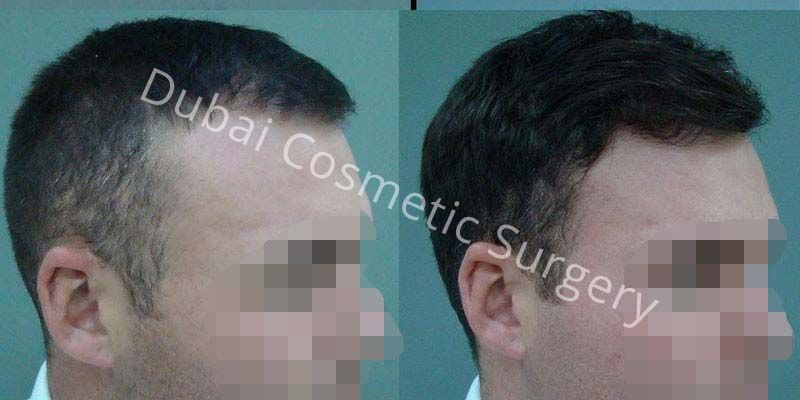 Hair Transplant Results 12