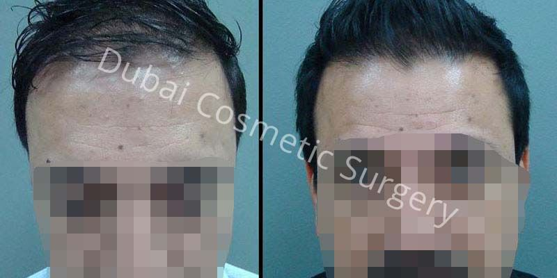 Hair Transplant Results 13