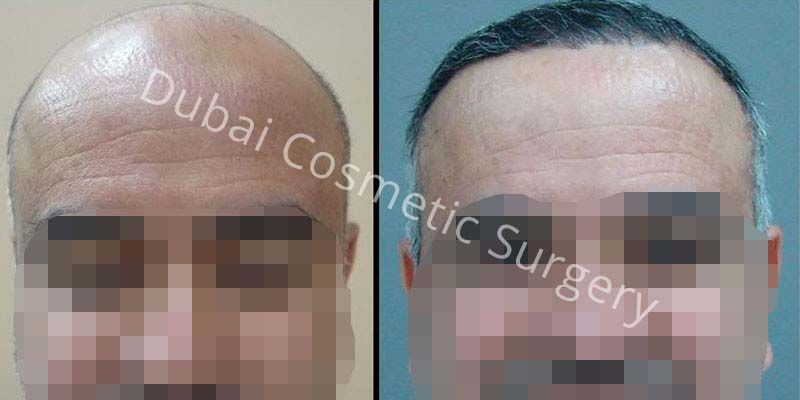 Hair Transplant Results 14
