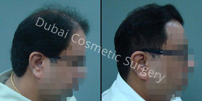 Hair Transplant Results 17
