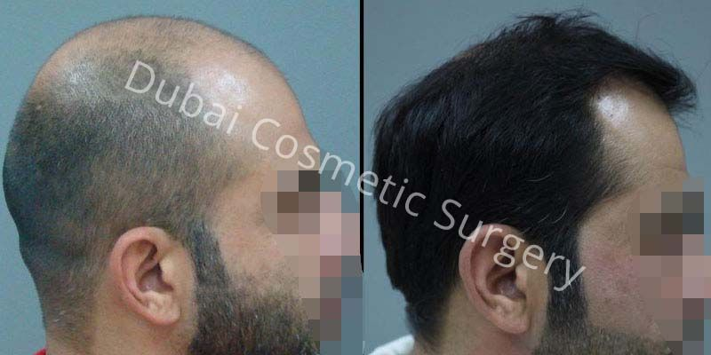 Hair Transplant Results 18