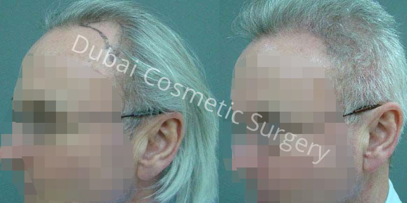 Hair Transplant Results 20