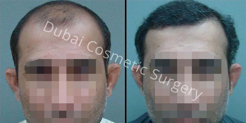 Hair Transplant Results 21