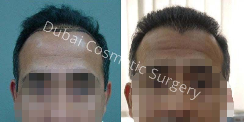 Hair Transplant Results 23