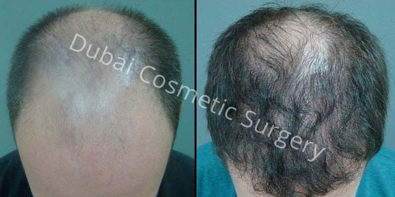 Hair Transplant Results 24