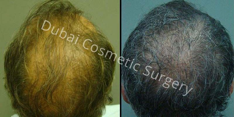 Hair Transplant Results 25