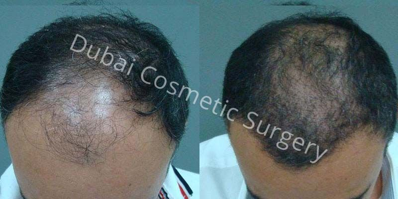 Hair Transplant Results 3