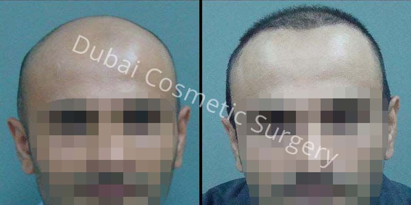 Hair Transplant Results 31