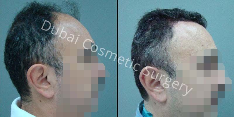 Hair Transplant Results 4