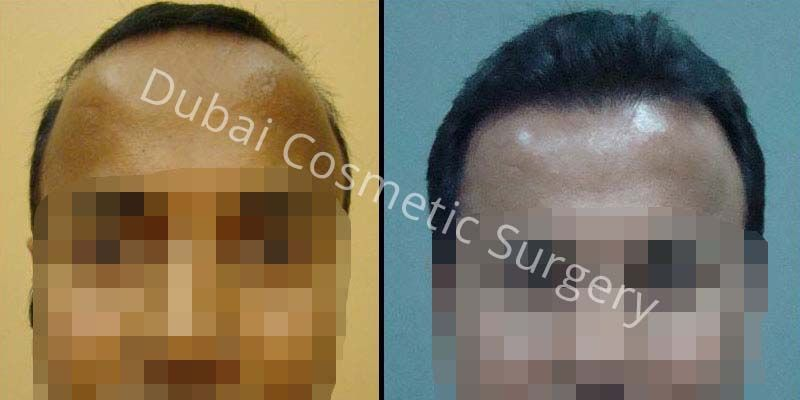 Hair Transplant Results 5
