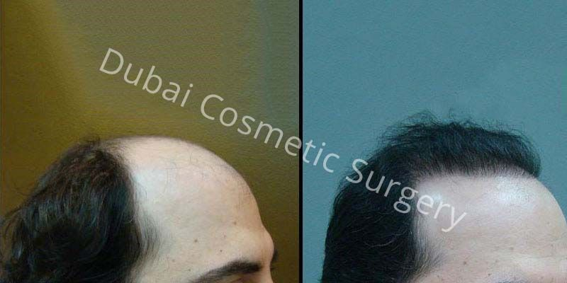 Hair Transplant Results 9