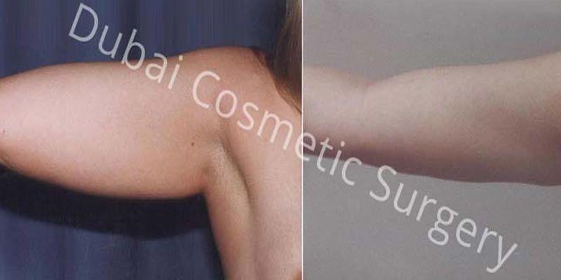 Liposuction 1