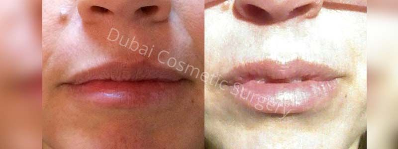 lips filler before after 3